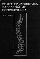 Тагер И.Л. Рентгенодиагностика заболеваний позвоночника. 1983 год